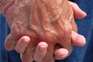 Mains personne âgée