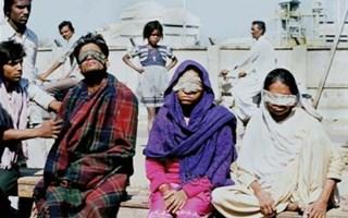 Victimes de l'usine de Bhopal devenues aveugles